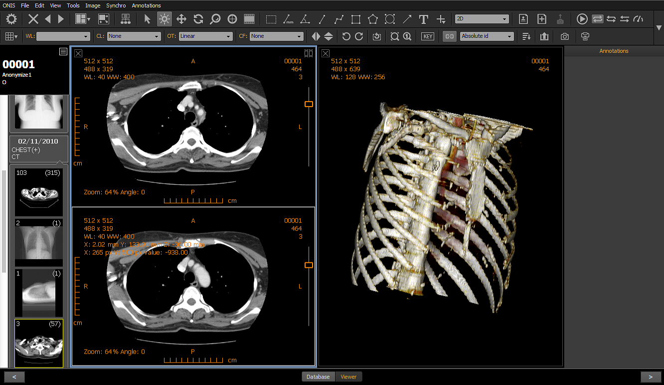 dicom image viewer software free download